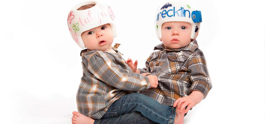Assimetria Craniana - Tratamento para cabeça torta do bebê