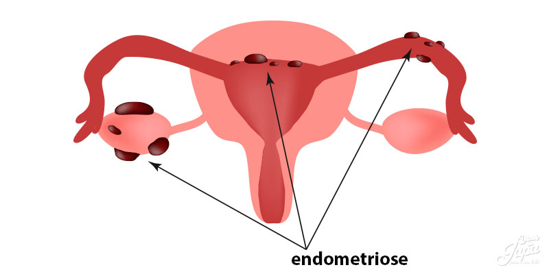 O que é Endometriose